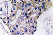 IHC of IL-5 (S92) pAb in paraffin-embedded human breast carcinoma tissue.