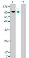 Western Blot analysis of ITGB5 expression in transfected 293T cell line by ITGB5 monoclonal antibody (M01), clone 2C4.Lane 1: ITGB5 transfected lysate(88.1 KDa).Lane 2: Non-transfected lysate.