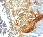 IHC testing of FFPE human tonsil with Involucrin antibody (clone INVO49).  This image was taken for the unmodified form of this product. Other forms have not been tested.