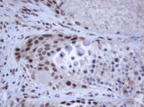 IHC of paraffin-embedded Carcinoma of Human lung tissue using anti-JUN mouse monoclonal antibody.