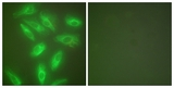Immunofluorescence of HeLa cells, using Keratin 18 Antibody. The picture on the right is treated with the synthesized peptide.