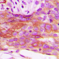 Immunohistochemical analysis of HSL staining in human breast cancer formalin fixed paraffin embedded tissue section. The section was pre-treated using heat mediated antigen retrieval with sodium citrate buffer (pH 6.0). The section was then incubated with the antibody at room temperature and detected using an HRP conjugated compact polymer system. DAB was used as the chromogen. The section was then counterstained with hematoxylin and mounted with DPX.