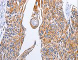 Immunohistochemistry of Human esophagus cancer using LIPE Polyclonal Antibody at dilution of 1:10.
