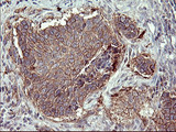 IHC of paraffin-embedded Carcinoma of Human lung tissue using anti-MMP13 mouse monoclonal antibody. (Heat-induced epitope retrieval by 10mM citric buffer, pH6.0, 120°C for 3min).