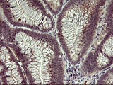 IHC of paraffin-embedded Adenocarcinoma of Human colon tissue using anti-MMP13 mouse monoclonal antibody. (Heat-induced epitope retrieval by 10mM citric buffer, pH6.0, 120°C for 3min).