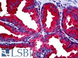 Anti-MMP13 antibody IHC of human prostate. Immunohistochemistry of formalin-fixed, paraffin-embedded tissue after heat-induced antigen retrieval. Antibody LS-B5183 concentration 20 ug/ml.
