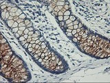 IHC of paraffin-embedded Adenocarcinoma of Human ovary tissue using anti-PVRL1 mouse monoclonal antibody.