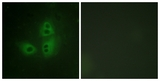 Immunofluorescence of HeLa cells, using nNOS (Ab-852) Antibody. The picture on the right is treated with the synthesized peptide.