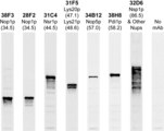 Western blots of whole yeast protein extracts with a collection of our antibodies. The blot for Nsp1p antibody is in the indicated lane, and the number indicates the SDS-PAGE molecular weight in kiloDaltons.