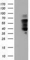 HEK293T cells were transfected with the pCMV6-ENTRY control (Left lane) or pCMV6-ENTRY NUMB (Right lane) cDNA for 48 hrs and lysed. Equivalent amounts of cell lysates (5 ug per lane) were separated by SDS-PAGE and immunoblotted with anti-NUMB.