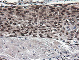 IHC of paraffin-embedded Carcinoma of Human bladder tissue using anti-NUMB mouse monoclonal antibody.