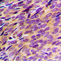 Immunohistochemical analysis of PDE4B/C/D staining in human breast cancer formalin fixed paraffin embedded tissue section. The section was pre-treated using heat mediated antigen retrieval with sodium citrate buffer (pH 6.0). The section was then incubated with the antibody at room temperature and detected using an HRP conjugated compact polymer system. DAB was used as the chromogen. The section was then counterstained with hematoxylin and mounted with DPX.