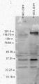Western blot analysis of Phosphotyrosine on normal (left) and EGF treated (right) phosphorylated tyrosines.  This image was taken for the unconjugated form of this product. Other forms have not been tested.