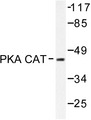 Western blot of PKACa (V191) pAb in extracts from mouse brain.