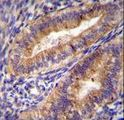 PTGS2 Antibody (Center P378) immunohistochemistry of formalin-fixed and paraffin-embedded human uterus tissue followed by peroxidase-conjugated secondary antibody and DAB staining.