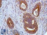 Immunohistochemistry of Human colon adenocarcinoma stained with anti-COX-2 antibody