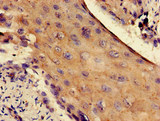 Immunohistochemistry of paraffin-embedded human cervical cancer at dilution of 1:100