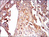 IHC of paraffin-embedded ovarian cancer tissues using SDC1 mouse monoclonal antibody with DAB staining.