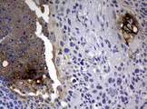 IHC of paraffin-embedded Carcinoma of Human lung tissue using anti-CA19-9 mouse monoclonal antibody.