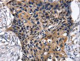 Immunohistochemistry of Human esophagus cancer using SLC2A2 Polyclonal Antibody at dilution of 1:35.