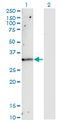 Western Blot analysis of TIMP1 expression in transfected 293T cell line by TIMP1 monoclonal antibody (M01), clone 4D12.Lane 1: TIMP1 transfected lysate(23.2 KDa).Lane 2: Non-transfected lysate.