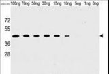 Western blot of anti-H1L antibody (SG071115B) in recombinant pGEX-H1L protein. H1L(arrow) was detected using the purified antibody.