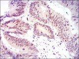 Immunohistochemistry-Paraffin: YAP1 Antibody (1A12) - Immunohistochemical analysis of paraffin-embedded rectum cancer tissues using YAP1 mouse mAb with DAB staining.