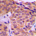 Immunohistochemical analysis of YAP1 staining in human breast cancer formalin fixed paraffin embedded tissue section. The section was pre-treated using heat mediated antigen retrieval with sodium citrate buffer (pH 6.0). The section was then incubated with the antibody at room temperature and detected using an HRP conjugated compact polymer system. DAB was used as the chromogen. The section was then counterstained with hematoxylin and mounted with DPX.