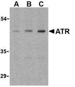 Western blot of ATR in HepG2 cell lysates with ATR antibody at (A) 0.5, (B) 1, and (C) 2 ug/ml.