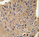 Formalin-fixed and paraffin-embedded human lung carcinoma tissue reacted with ANTXR1 Antibody (Y382) , which was peroxidase-conjugated to the secondary antibody, followed by DAB staining. This data demonstrates the use of this antibody for immunohistochemistry; clinical relevance has not been evaluated.