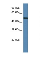 ANXA11 / Annexin A11 antibody Western blot of Mouse Pancreas lysate. Antibody concentration 1 ug/ml.  This image was taken for the unconjugated form of this product. Other forms have not been tested.