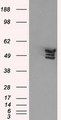 HEK293T cells were transfected with the pCMV6-ENTRY control (Left lane) or pCMV6-ENTRY ANXA11 (Right lane) cDNA for 48 hrs and lysed. Equivalent amounts of cell lysates (5 ug per lane) were separated by SDS-PAGE and immunoblotted with anti-ANXA11.