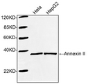 Western blot of cell lysates using 1 ug/ml Rabbit Anti-Annexin II Polyclonal Antibody. The signal was developed with IRDye 800 Conjugated Goat Anti-Rabbit IgG. Predicted Size: 38 KD. Observed Size: 38 KD.