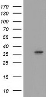 ANXA3 / Annexin A3 Antibody - HEK293T cells were transfected with the pCMV6-ENTRY control (Left lane) or pCMV6-ENTRY ANXA3 (Right lane) cDNA for 48 hrs and lysed. Equivalent amounts of cell lysates (5 ug per lane) were separated by SDS-PAGE and immunoblotted with anti-ANXA3.