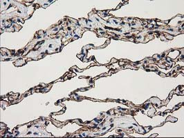 ANXA3 / Annexin A3 Antibody - IHC of paraffin-embedded Human lung tissue using anti-ANXA3 mouse monoclonal antibody.