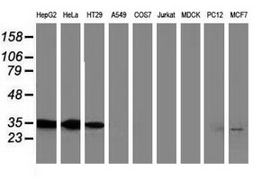 ANXA3 / Annexin A3 Antibody - Western blot of extracts (35 ug) from 9 different cell lines by using anti-ANXA3 monoclonal antibody (HepG2: human; HeLa: human; SVT2: mouse; A549: human; COS7: monkey; Jurkat: human; MDCK: canine; PC12: rat; MCF7: human).