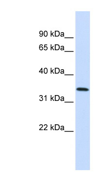 ANXA4 / Annexin IV antibody western blot of Fetal Lung lysate.  This image was taken for the unconjugated form of this product. Other forms have not been tested.