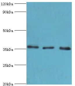 Western blot. All lanes: Annexin A4 antibody at 4 ug/ml. Lane 1: 293T whole cell lysate. Lane 2: HeLa whole cell lysate. Lane 3: HepG2 whole cell lysate. secondary Goat polyclonal to rabbit at 1:10000 dilution. Predicted band size: 36 kDa. Observed band size: 36 kDa.
