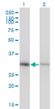 Western blot of ANXA4 expression in transfected 293T cell line by ANXA4 monoclonal antibody, clone 1D3.