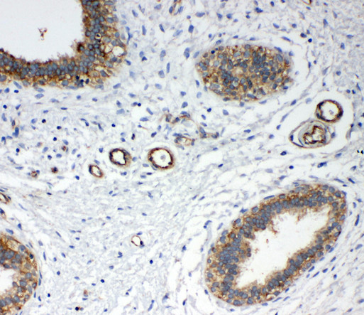 ANXA4 / Annexin IV antibody. IHC(P): Human Breast Cancer Tissue.