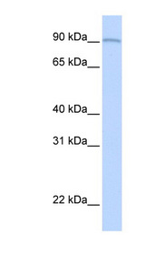 AOC2 / SSAO Antibody - AOC2 antibody Western blot of Fetal Lung lysate. This image was taken for the unconjugated form of this product. Other forms have not been tested.