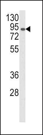 Western blot of AOC3 Antibody in CEM cell line lysates (35 ug/lane). AOC3 (arrow) was detected using the purified antibody.
