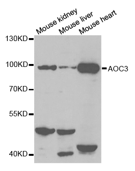 Western blot analysis of extracts of various cell lines, using AOC3 antibody.