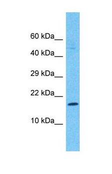 AP1S2 Antibody - Western blot of AP1S2 Antibody with human Stomach Tumor lysate.  This image was taken for the unconjugated form of this product. Other forms have not been tested.