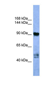 AP2A2 Antibody - AP2A2 antibody Western blot of Fetal Lung lysate.  This image was taken for the unconjugated form of this product. Other forms have not been tested.