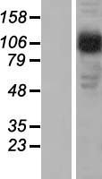 AP2B1 Protein - Western validation with an anti-DDK antibody * L: Control HEK293 lysate R: Over-expression lysate