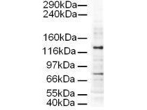 Anti-AP3D1 Antibody - Western Blot. Western blot of Affinity Purified anti-AP3D1 antibody shows detection of a 130-kD band corresponding to Human AP3D1 in a HeLa whole cell lysate. The lower molecular weight band most likely represents non-specific binding. Approximately 20 ug of lysate was run on a SDS-PAGE and transferred onto nitrocellulose followed by reaction with a 1:500 dilution of anti-AP3D1 antibody. Detection occurred using a 1:5000 dilution of HRP-labeled Rabbit anti-Goat IgG for 1 hour at room temperature. A chemilumi-nescence system was used for signal detection (Roche) using a 30-sec exposure time.