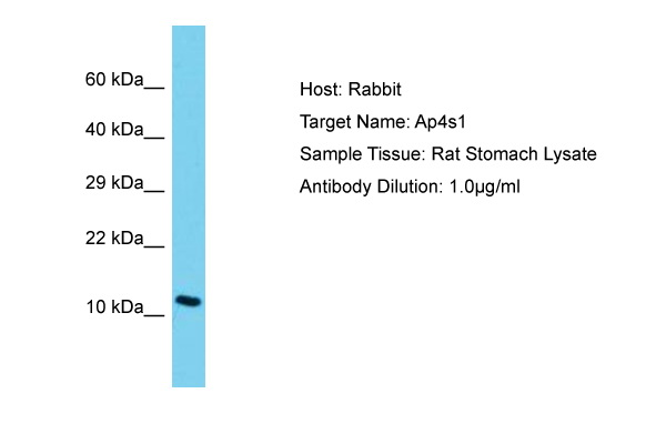 AP4S1 Antibody -  This image was taken for the unconjugated form of this product. Other forms have not been tested.