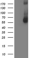 AP50 / AP2M1 Antibody - HEK293T cells were transfected with the pCMV6-ENTRY control (Left lane) or pCMV6-ENTRY AP2M1 (Right lane) cDNA for 48 hrs and lysed. Equivalent amounts of cell lysates (5 ug per lane) were separated by SDS-PAGE and immunoblotted with anti-AP2M1.
