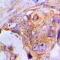 Immunohistochemical analysis of APAF-1 staining in human lung cancer formalin fixed paraffin embedded tissue section. The section was pre-treated using heat mediated antigen retrieval with sodium citrate buffer (pH 6.0). The section was then incubated with the antibody at room temperature and detected using an HRP conjugated compact polymer system. DAB was used as the chromogen. The section was then counterstained with hematoxylin and mounted with DPX.